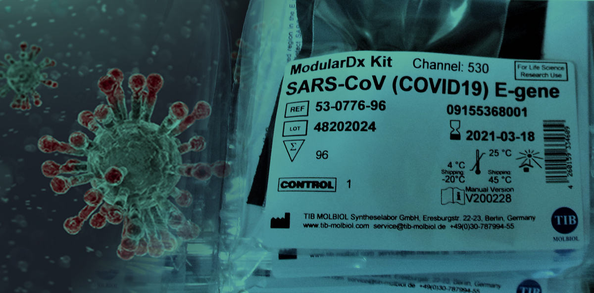 Etisoft produces labels for coronavirus tests!